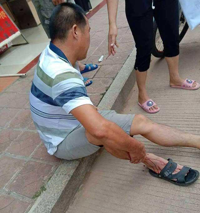打假纰缪,正确解析案例之(六)为何此命被砸伤后脚跟落下残疾?